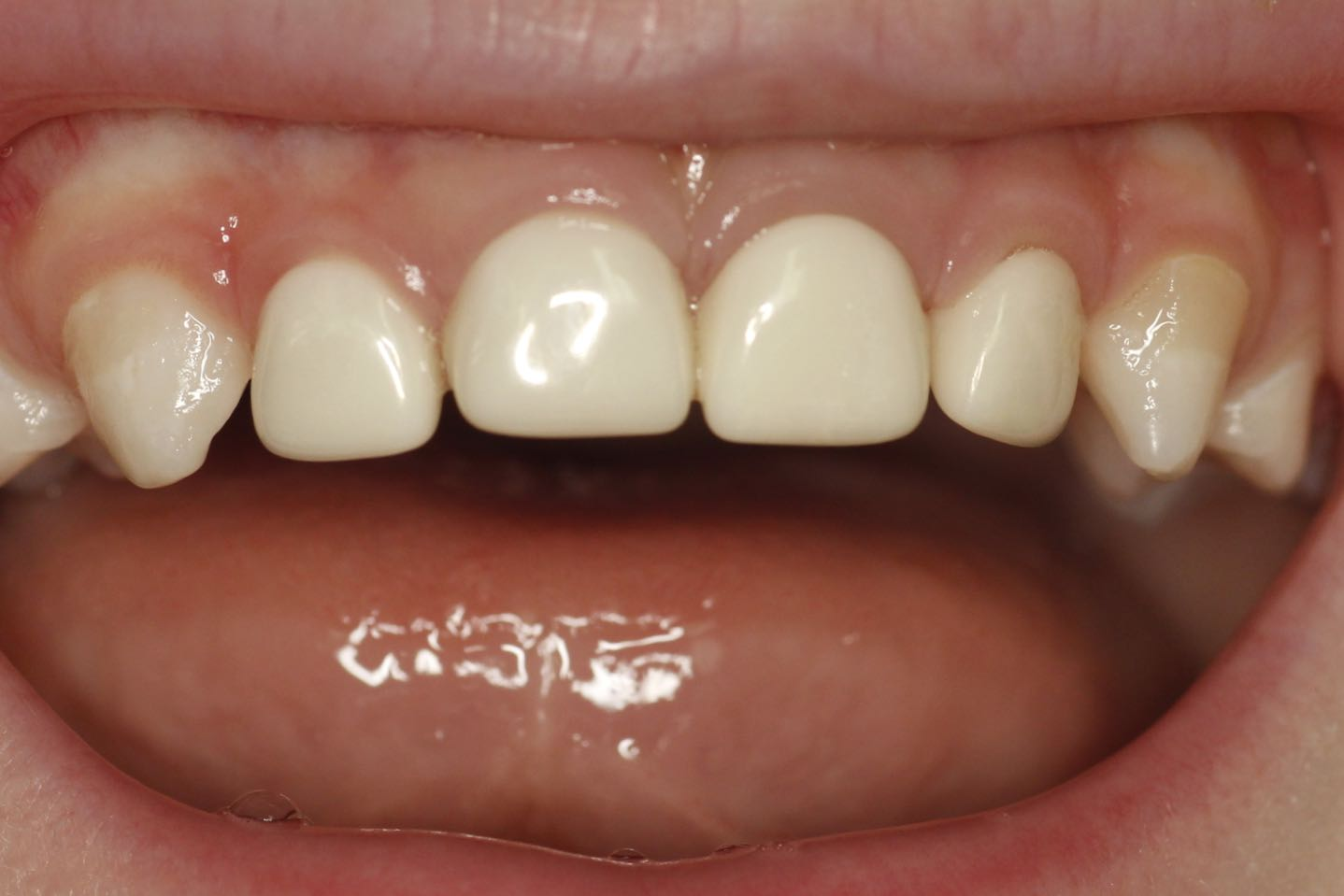 restored decay cosmetic fillings